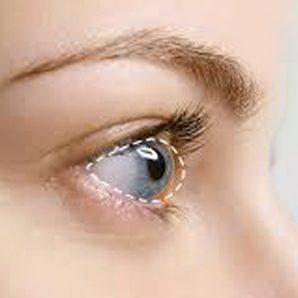 Ceratocone é uma doença ocular bilateral e progressiva do olho, que afeta o  formato (com aspecto de cone) e a espessura corneana. 58cbd9bcaf